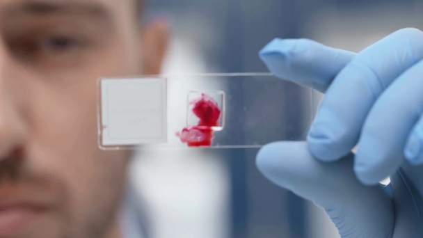 cropped view of scientist looking at blood sample on glass in laboratory - Footage, Video
