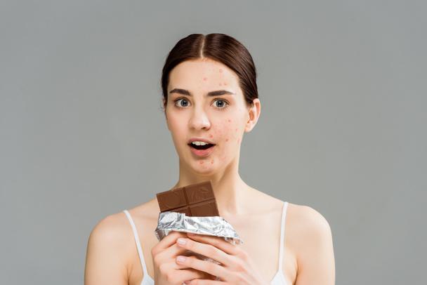 здивована жінка брюнетка з акне на обличчі тримає шоколадний бар ізольований на сірий  - Фото, зображення