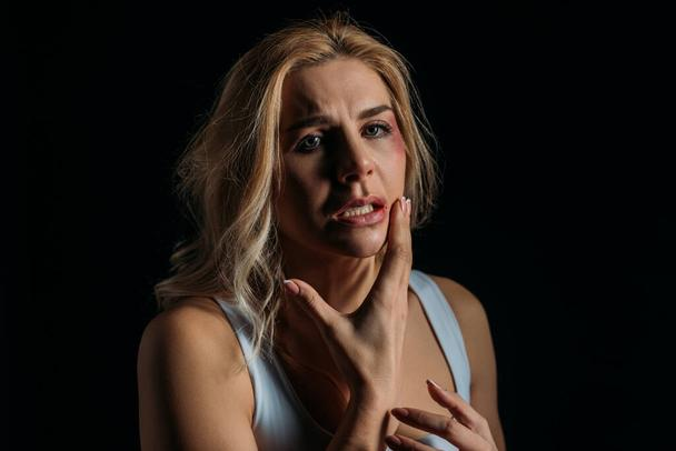 Frightened Victim touching face with bruise isolated on black  - Photo, Image