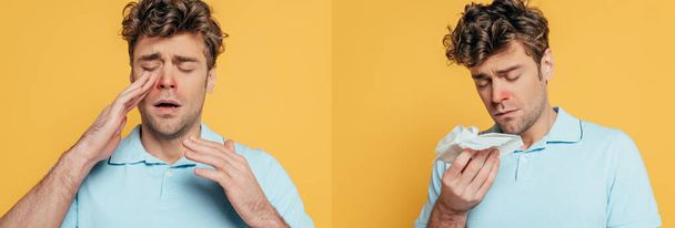 Collage of man suffering from sickness with napkins on yellow, panoramic shot - Photo, Image