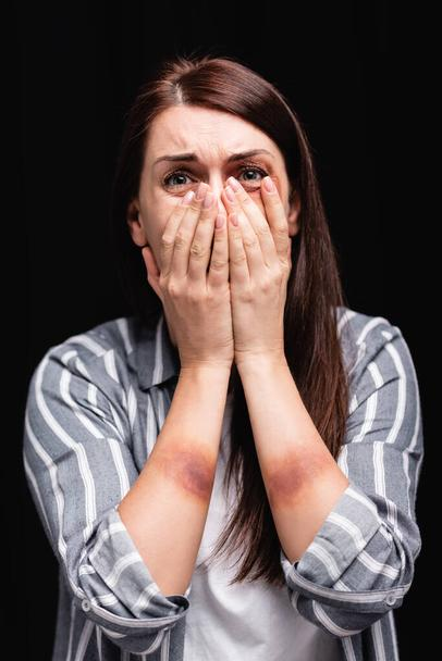 Depressed woman with bruises on hands covering mouth isolated on black  - Photo, Image