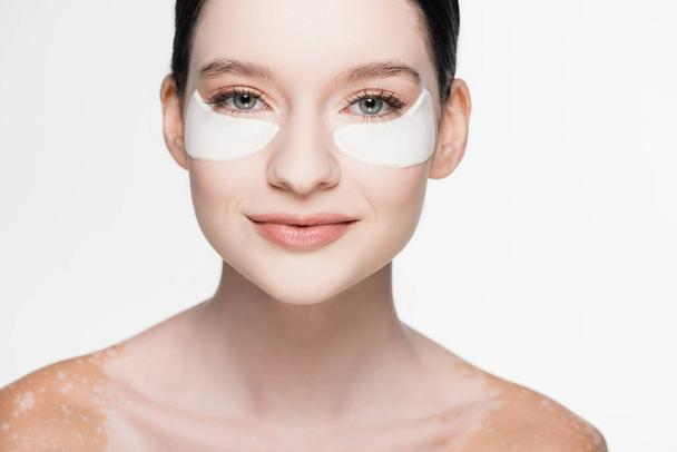 young beautiful woman with vitiligo and eye patches on face isolated on white - Photo, Image