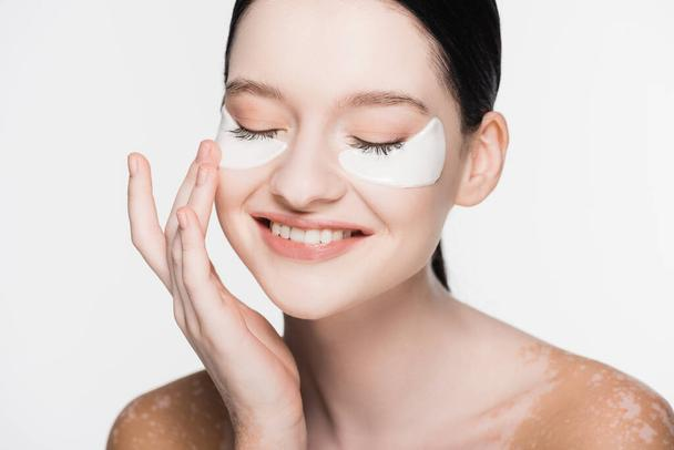 smiling young beautiful woman with vitiligo and eye patches on face isolated on white - Photo, Image